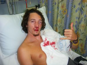 surfboard face accident