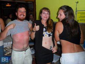 backpacker fail sunburn